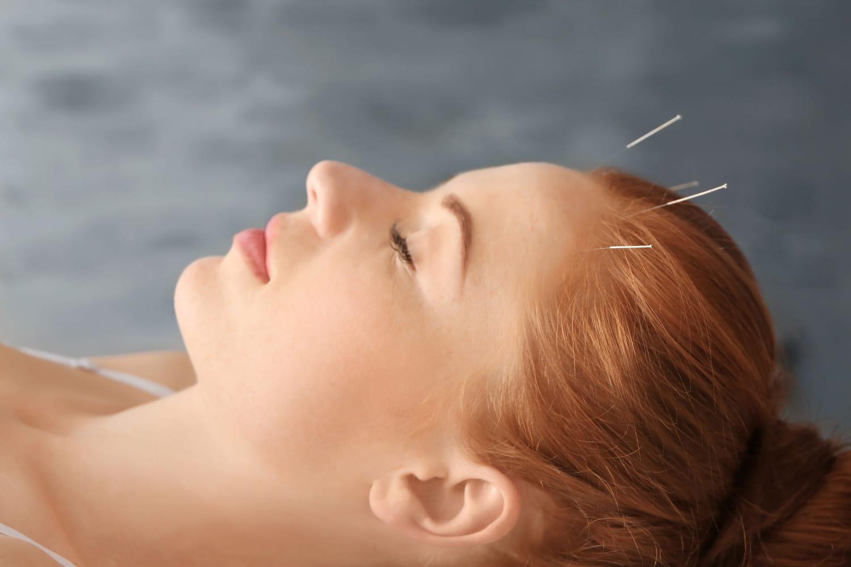 Acupuncture pour le stress: points, déroulé d'une séance