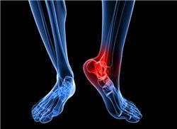 les articulations souffrent beaucoup des hémorragies à répétition, qui