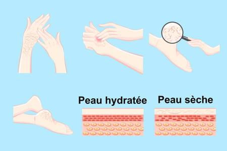Schéma peau sèche