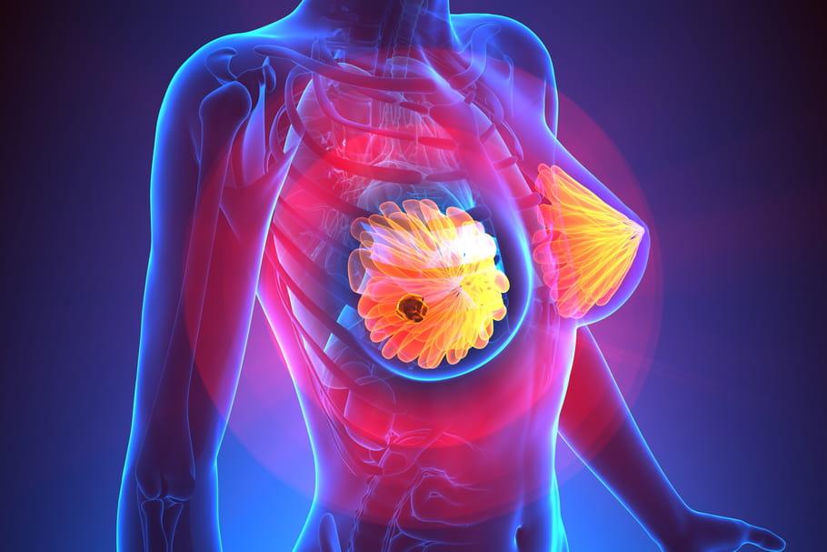¿Qué signos cuando el cáncer de mama hace metástasis?