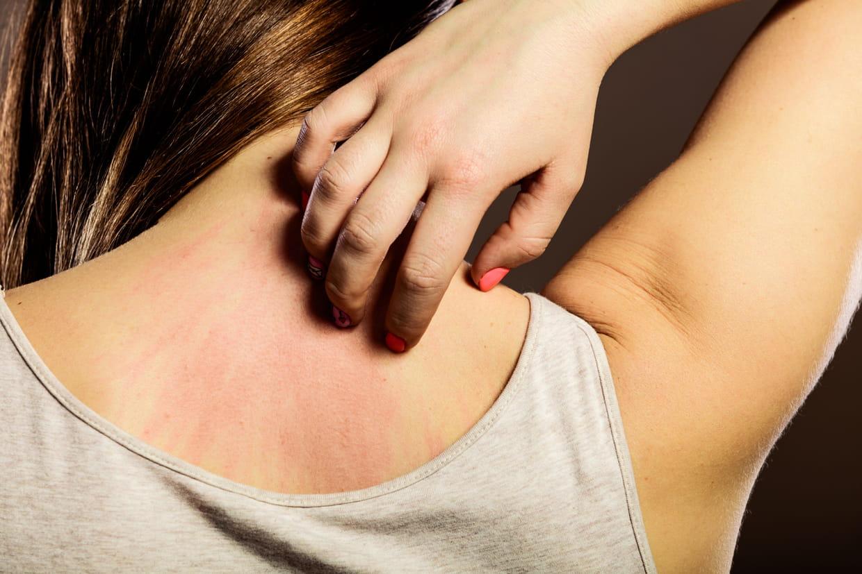 Démangeaisons cutanées : pourquoi la peau gratte ?