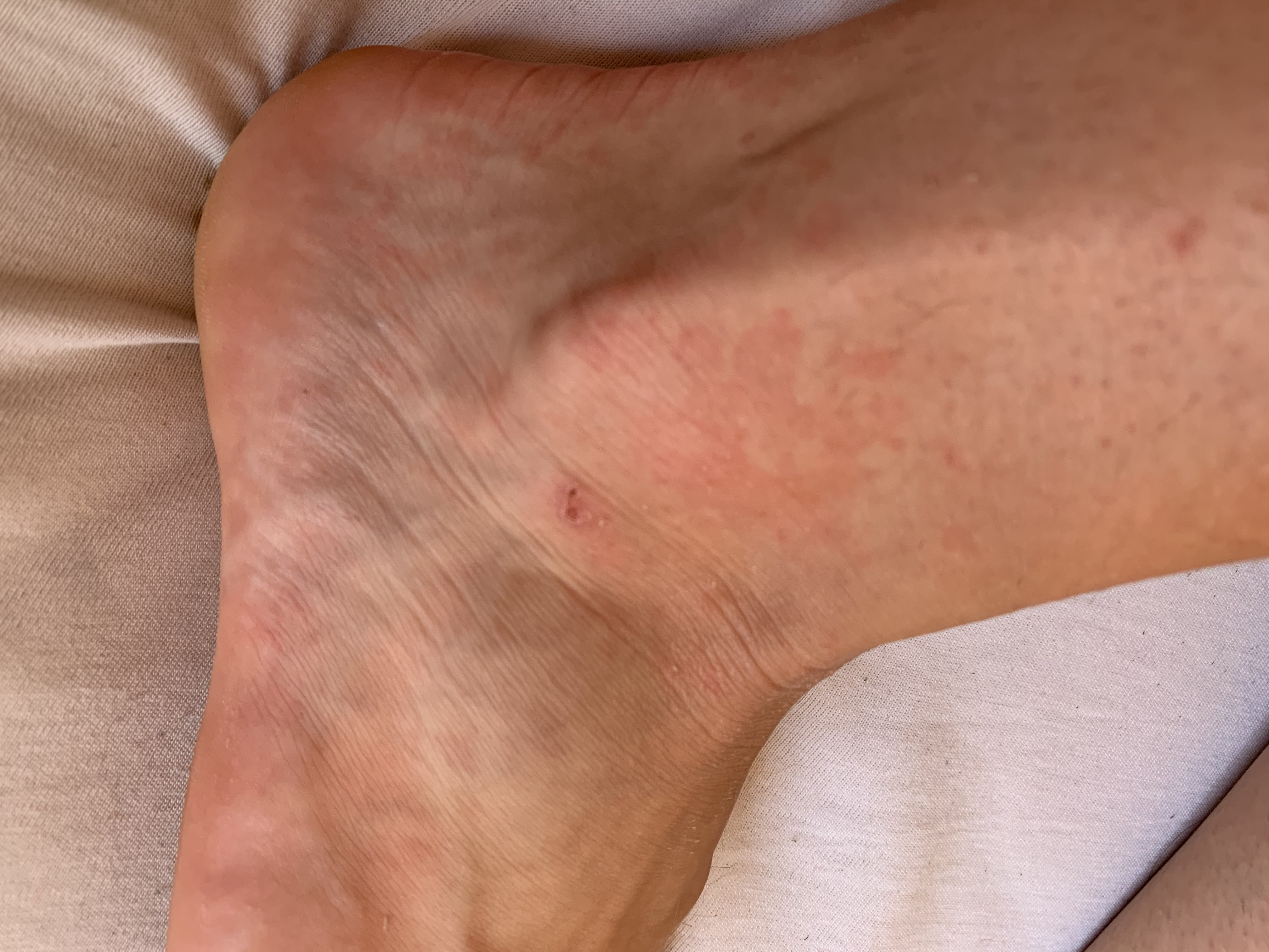 plaque rouge pied