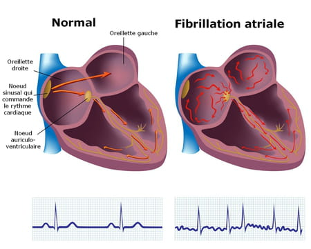 fibrillation auriculaire atriale ACFA coeur
