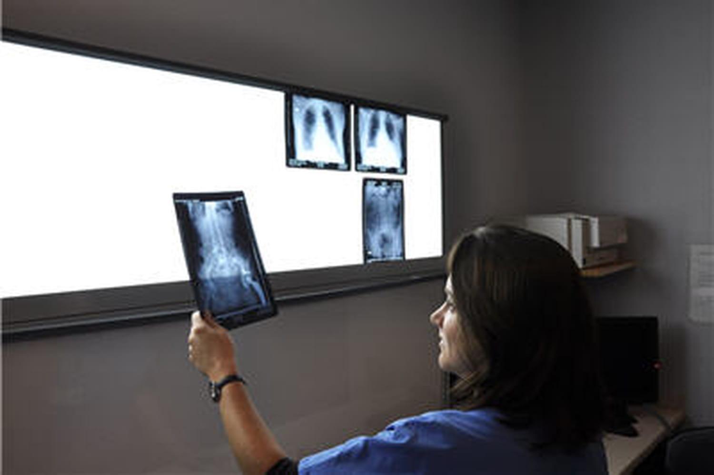 Les délais d'attente pour un IRM sont de plus en plus longs