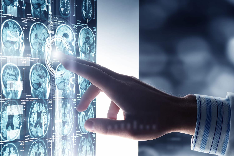 Atrophie cérébrale: symptômes, causes, lien avec Alzheimer, traitement