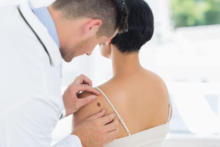 Les signes d'un cancer de la peau