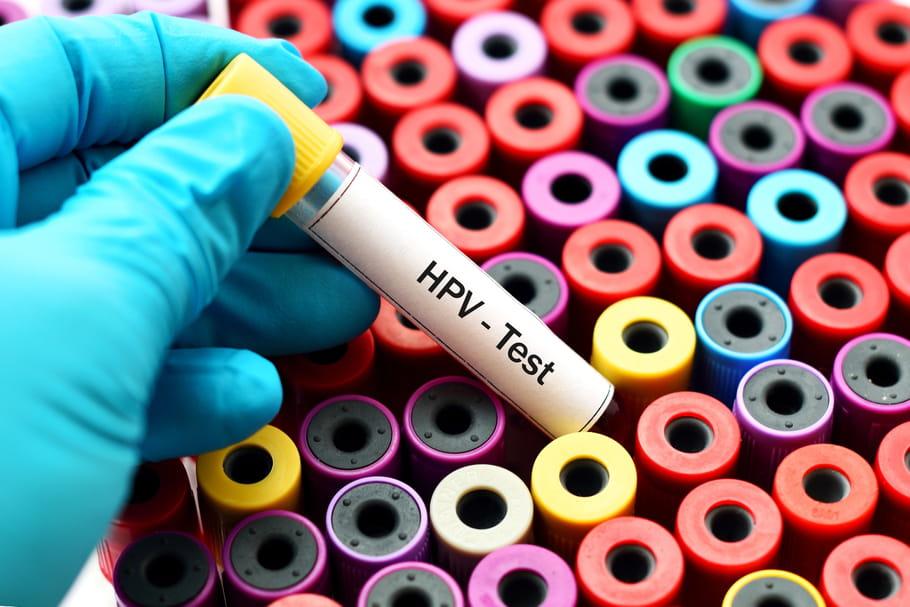papillomavirus frottis normális)