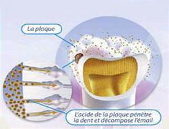l'acide de la plaque dentaire entraîne une déminéralisation.
