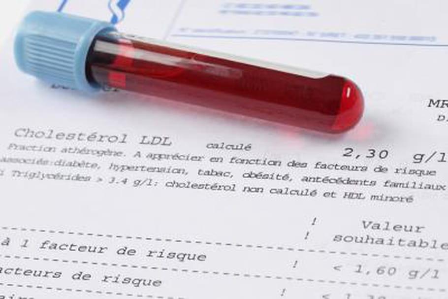 L'hyperglycémie par voie orale