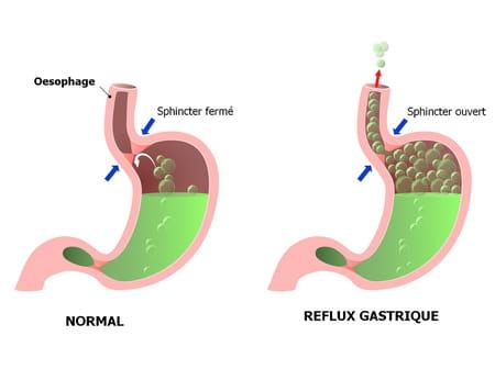 pyrosis brûlure oesophage RGO reflux gastrique