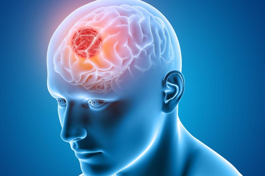 Cancer du cerveau: signes, noms, traitements, causes, stades, survie