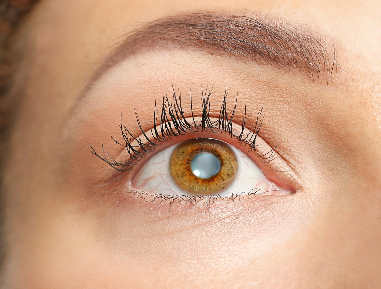 Cancer de l'oeil: traitement, causes, métastases