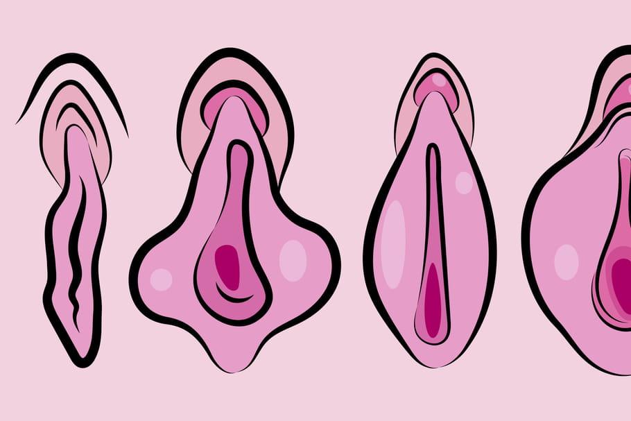 Vaginoplastie: la chirurgie qui resserre le sexe de la femme