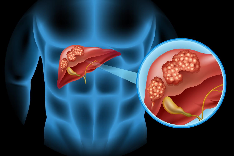 cancer colorectal foie)
