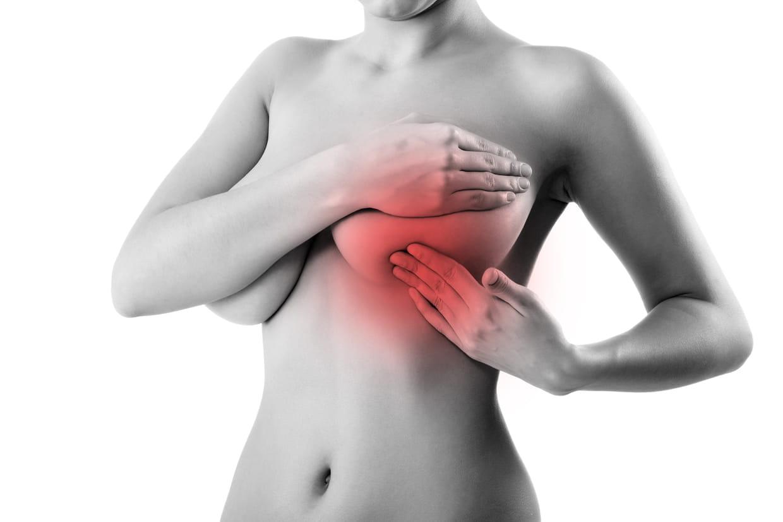 Mal au sein et rougeur : une mastite ?