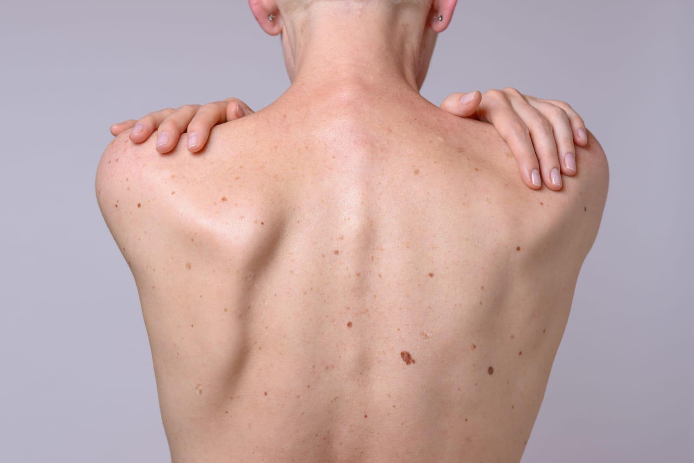 Carcinome spinocellulaire: traitements, aspect, âge, évolution