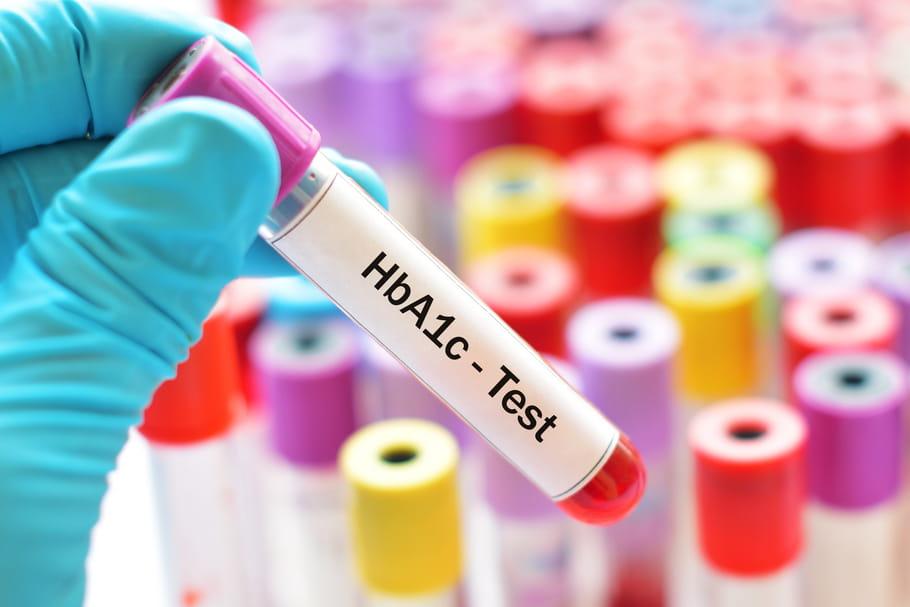 Hémoglobine glyquée: quel est le taux normal?
