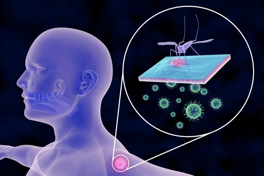 Dengue: les symptômes de la maladie