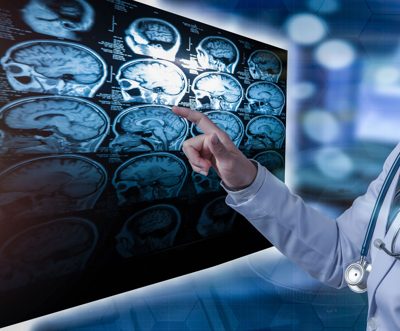 Méningiome: symptômes, biopsie, opération, traitements