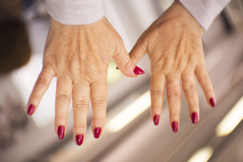 Arthrose des doigts : comment la soulager ?