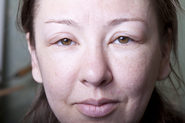 AOH angiœdème héréditaire: symptôme, test, traitement
