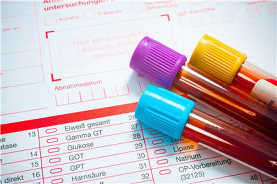 Hémochromatose : un diagnostic précoce indispensable