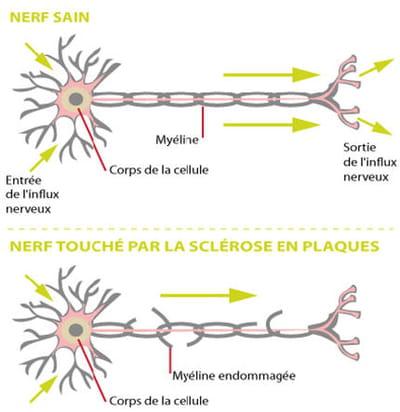 lors des poussées, la myéline, qui entour le nerf, se trouve détruite pas