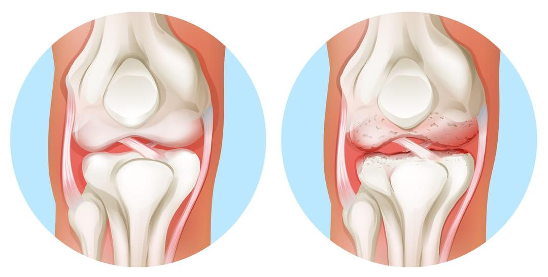 Arthrose du genou (gonarthrose) : comment la soulager ?