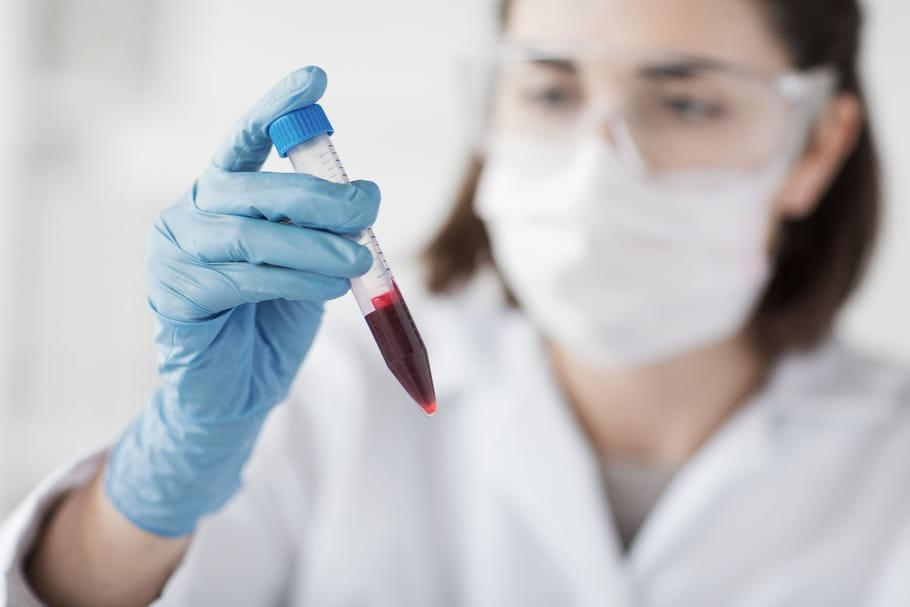 Anémie hypochrome: symptômes, causes, traitements