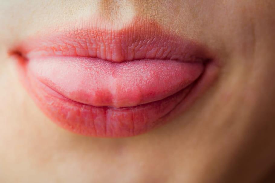 Langue engourdie: symptômes, causes, que faire?