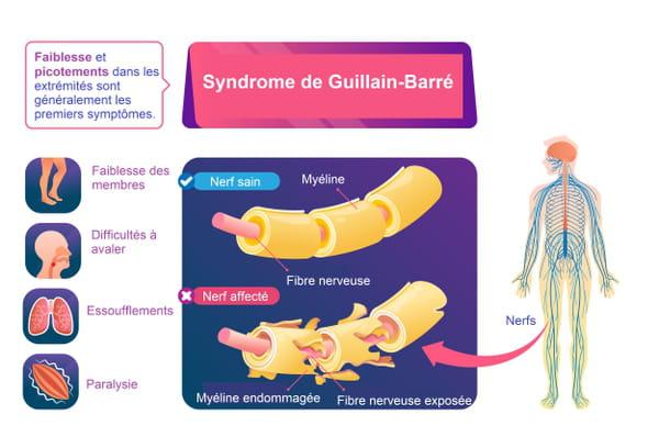 Schéma du syndrome de Guillain-Barré