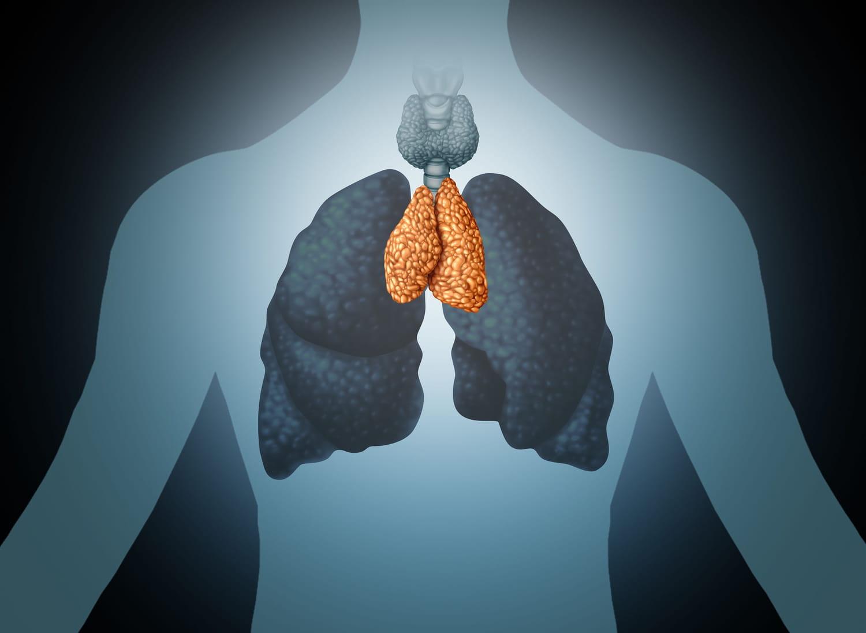 Cancer du thymus: symptômes, causes, traitement