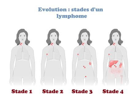 Stades d'un lymphome