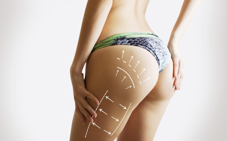 Liposuccion des fesses: indications, tarif et douleur