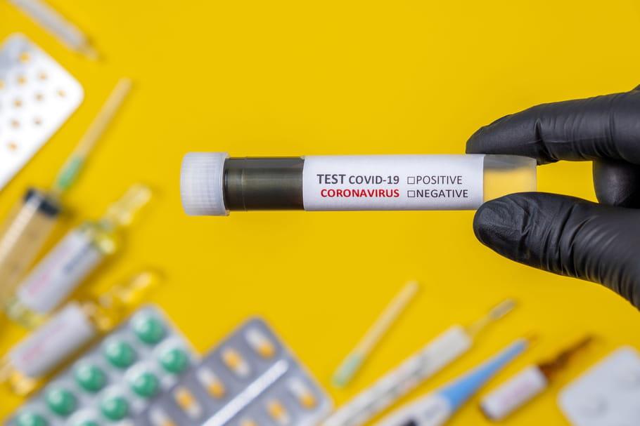 Test Covid-19 : PCR ou antigénique, pharmacie, résultats, sans rdv... - Le Journal des Femmes