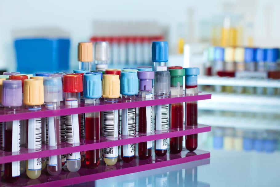 Biobanques : quand les patients participent à la recherche médicale