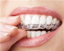 gouttières de blanchiment dentaire.