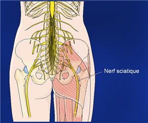 les nerfs sciatiques, nous en avonsune paire, cheminent de la hanche vers les