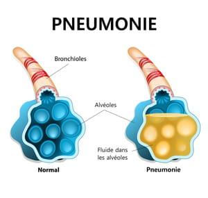 Pneumocoque pneumonie schema