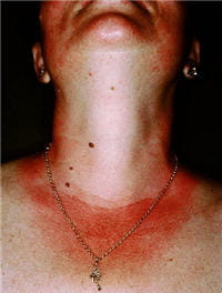 le coup de soleil est considéré plutôt comme une inflammation qu'une brûlure.