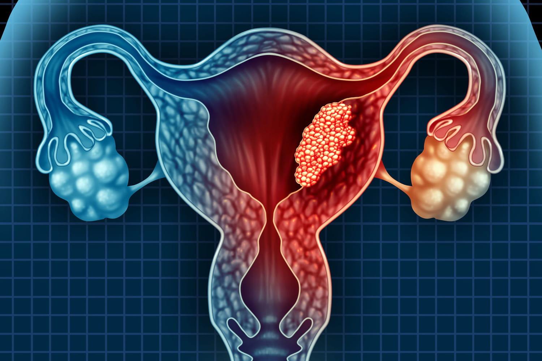 Cancer de l'endomètre: symptômes, âge, survie, traitements