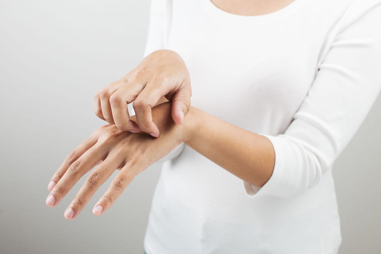 Dyshidrose : reconnaître et soigner cet eczéma des mains et ...