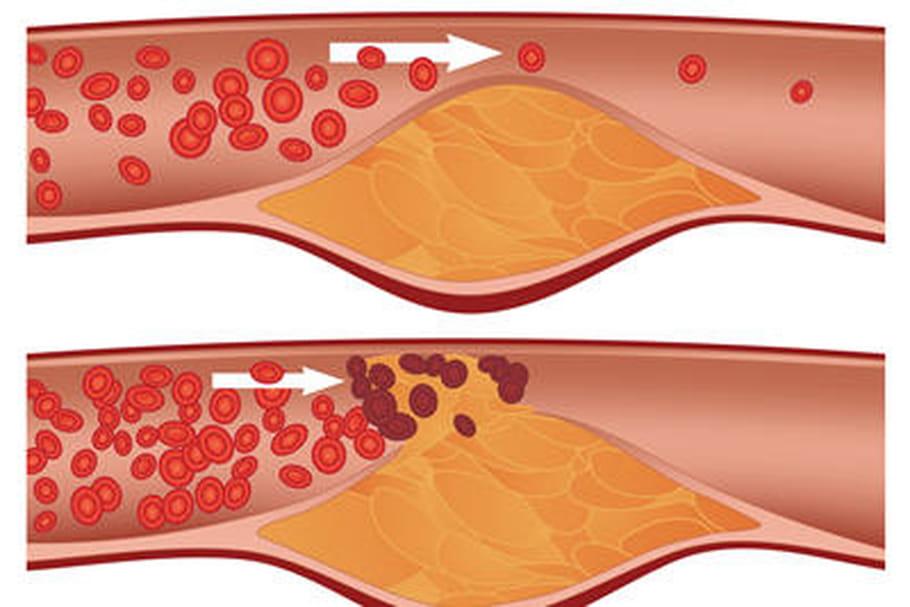 Polémique autour des médicaments contre le cholestérol
