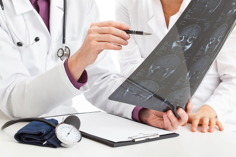 Tumeur du cervelet: causes, symptômes, vertiges, opération
