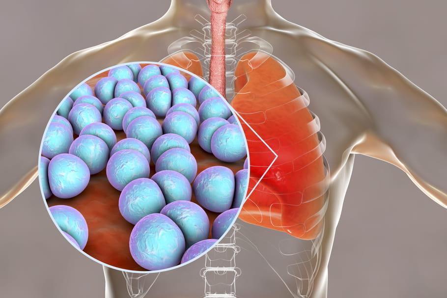 Pneumocoque: premiers symptômes, transmission et traitements