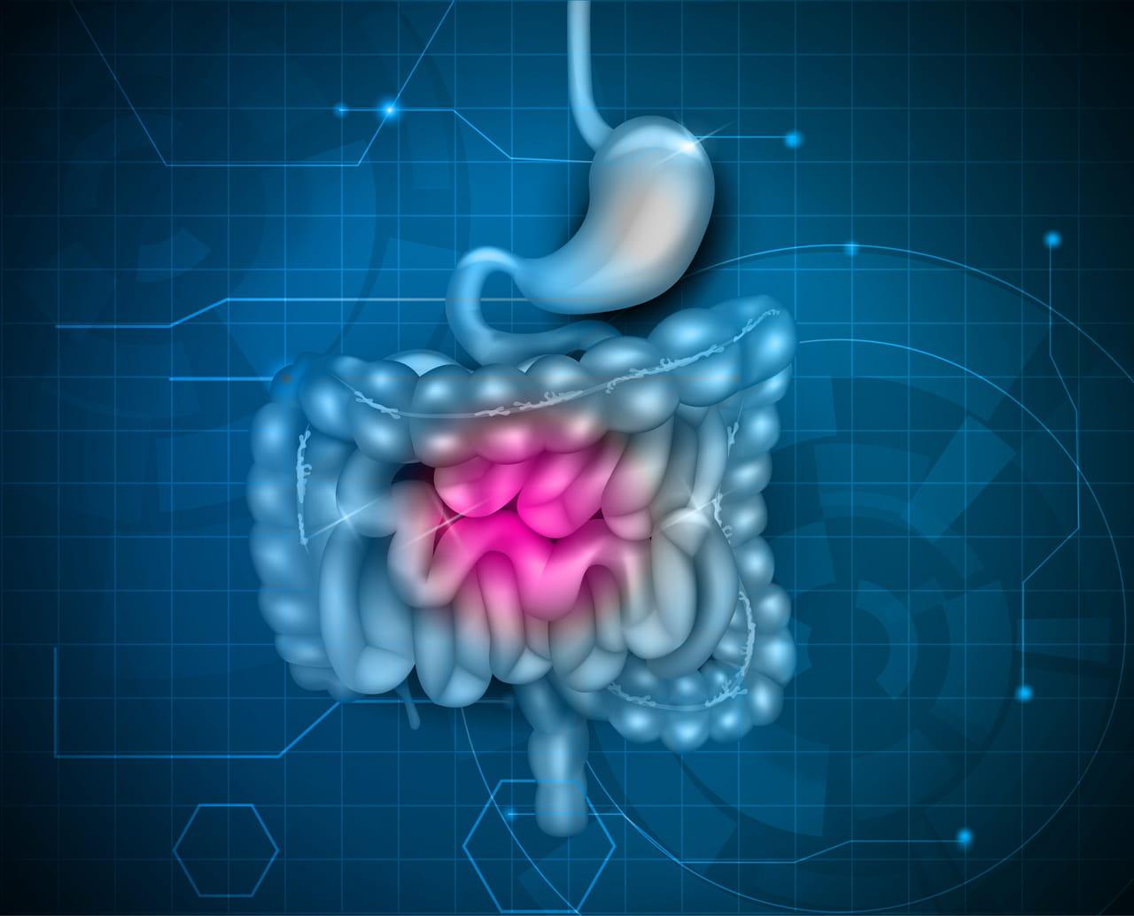 Colopathie fonctionnelle (côlon irritable) : symptômes et alimentation