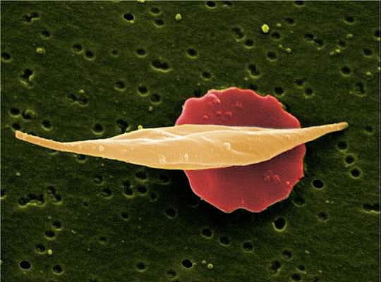 Anémie falciforme
