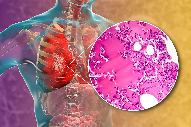 Lèpre: contagion, symptômes, vaccin, traitement, photo