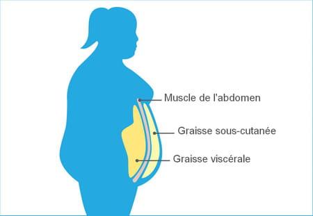 schéma obésité graisse