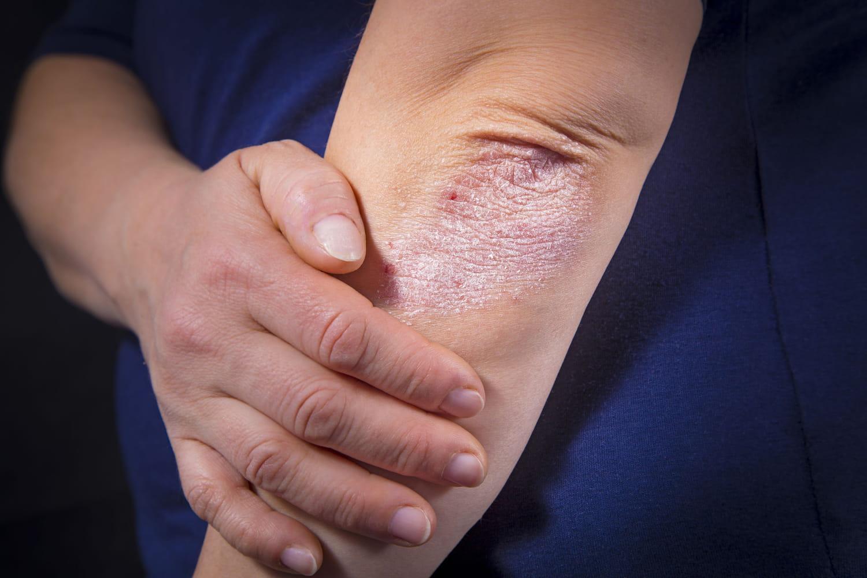 Psoriasis inversé: causes, symptômes, photo, traitement